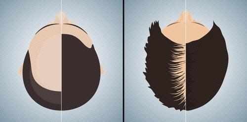대머리로 불리는 남성형 탈모증(왼쪽)과 중심부 머리숱이 적어지는 여성형 탈모증(오른쪽)의 전형적인 모습. /사진제공=서울대병원