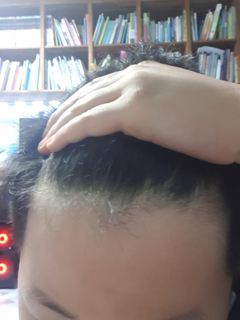 전 평상시애 곱슬이 심해서 앞머리를 많이 돌려서 앞으로빼고 스트레스 좀 많이 받아요 탈모인가요?