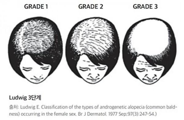 남자랑 다르게 앞머리는 유지가 되고 정수리만 진행된다.  여자도 남자랑 마찬가지로 초기에 치료하는게 중요하고 3단계쯤 되면 힘들다고 볼수있음.     고로 탈모끼가 보인다면 바로바로 병원가서 검사받고 치료시작하는게 무조건 답임.