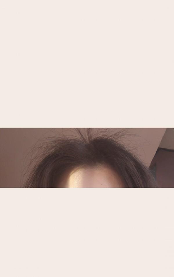 정면에서 본 머리카락입니다. 뭔가 풍성해보이죠? 미녹시딜의 영향으로 머리카락이 자란거에요 ㅋㅋ 그런데 난 정수리 탈모인데..!  분명 미녹시딜을 정수리에 발랐지만? 저렇게 되었어요    Next 사진, 문제의 정수리 입니다.