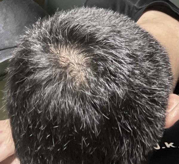 머리감은후