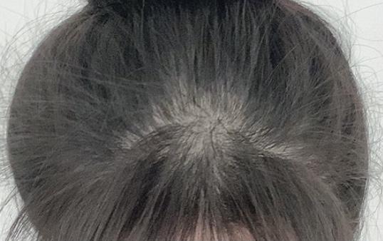정수리 윗부분앞머리 시작되는 같은 부분입니다  사진으로 확인해도 점점 조금씩 머리가 나오고있는것 같은 느낌이에요!!!! 몇개월동안 더더 꾸준히 먹으면 다시 원상복기 되지않을까 싶어요