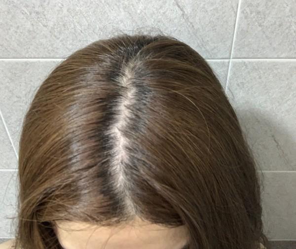 머리감기전 - 가르마 쪽으로 붉은 두피 - 축쳐진 모발