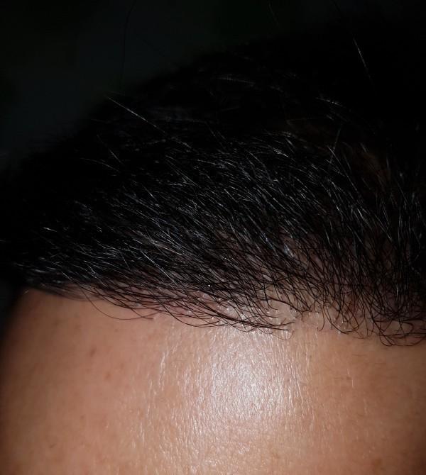 6개월차 .. 앞 이마 머리카락이 이제 힘이 있어 보이죠..
